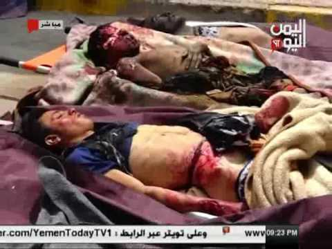 اليمن اليوم 13 2 2017