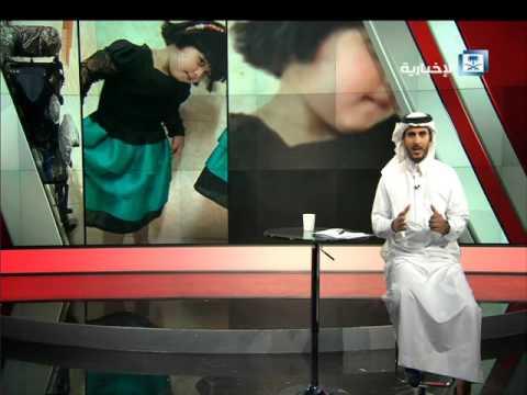 #فيديو :: خطأ طبي يتسبب بإعاقة طفلة