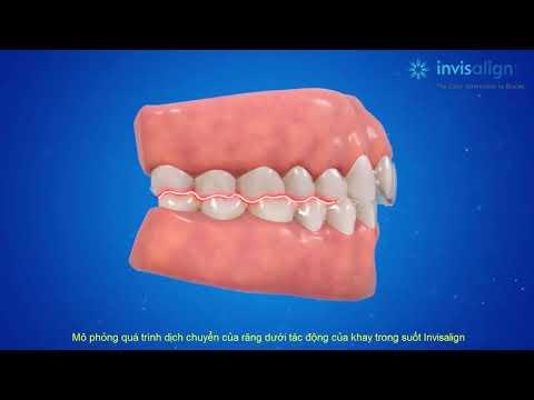 Invisalign Việt Nam - Mô phỏng quá trình dịch chuyển của răng dưới tác động của khay Invisalign