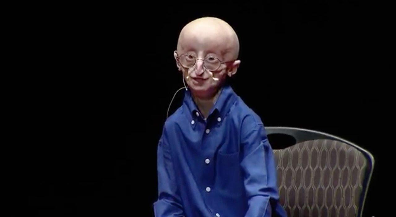 بالفيديو: وفاة الطفل سام بمرض الشيخوخة عن عمر 17 عاماً | زووم