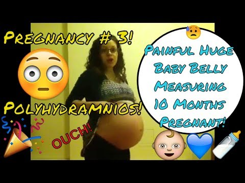 The Pain! Huge Baby Belly Measuring 10 Months Pregnant : Polyhydramnios