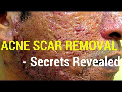 How to treat acne scars- Dermatology Secrets revealed