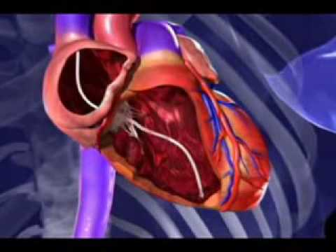 Animation: New therapy prevents heart failure