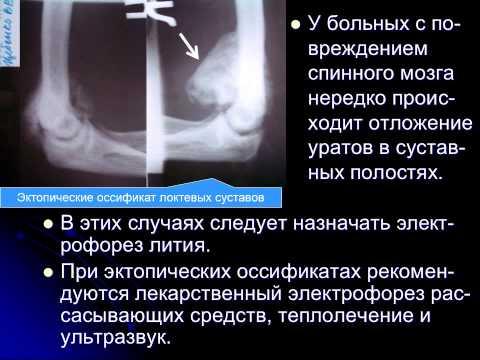 Физиотерапия в системе реабилитации травматической болезни спинного мозга