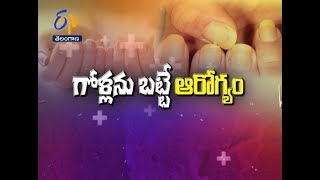 Nails and Health | Sukhibhava | 23rd July 2017 | Full Episode | ETV Telangana