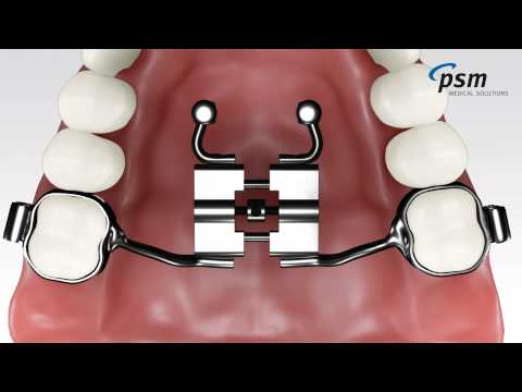PSM - The Mentoplate System.wmv