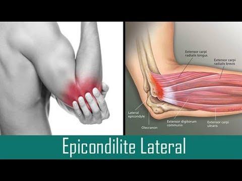 Tratar a Epicondilite