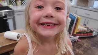 WE CAN'T BELIEVE ANOTHER TOOTH CAME OUT!