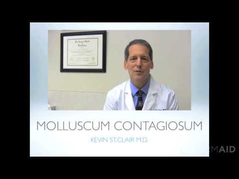 Molluscum Contagiosum 2