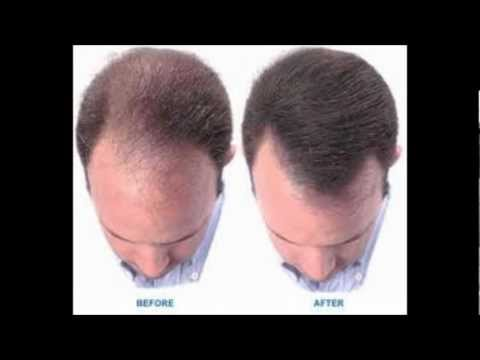 HOW TO REGROW HAIR| Easy Hair Loss Cure