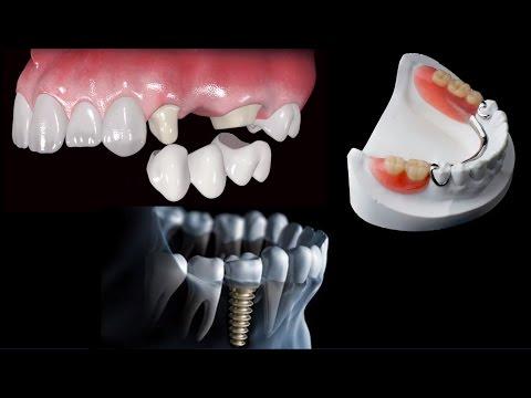 Como Recolocar Dentes Perdidos