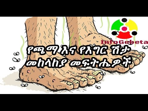 InfoGebeta: How to resolve smelly feet and smelly shoes Problem