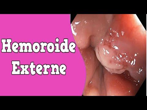 Crise Hemorroide Forum – Creme Hemorroide | Hémorroïdes