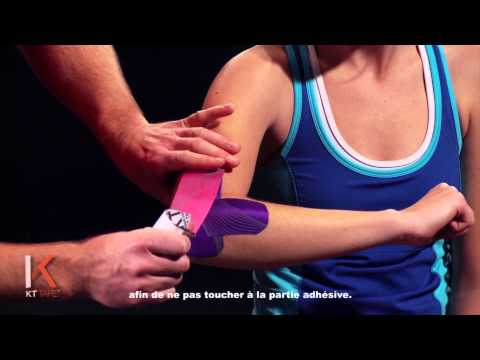 comment soigner epicondylite du coude