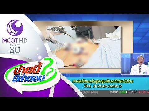 บ่ายนี้มีคำตอบ (10 มี.ค.60) ผ่าตัดไร้แผลในผู้หญิงที่แรกที่เดียวในไทย | ช่อง 9 MCOT HD