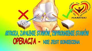 Artroza, Zapalenie Stawów, Zwyrodnienie Stawów - Operacja, Nie Jest Konieczna. Aleksander Haretski.