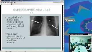 Allergic  Bronchopulmonary Aspergillosis (Sunena Argo, MD)