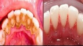 Video This Not A Joke Remove Dental Plaque In 2 Minutes Without Going To The Dentist MP3, 3GP, MP4, WEBM, AVI, FLV Agustus 2018