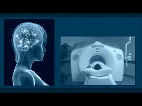 Brain Injury Lawyer Rochester NY | 585-678-4500