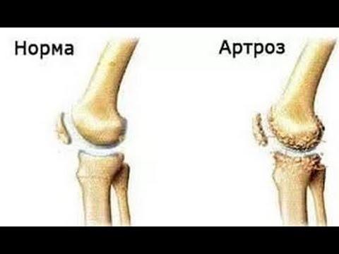 Артроз коленного сустава  - лечение, упражнения, гимнастика