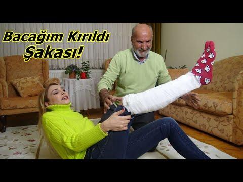 Babam'a Bacağım Kırıldı Şakası 😁 Çok Korktu! Komik Video