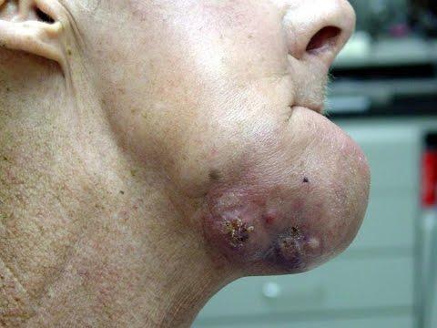 Рак Ротовой Полости 2