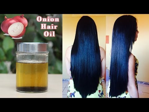How To Make Onion Hair Oil At Home : Super Fast Hair Growth, Cure Baldness And Reduce Hair-fall