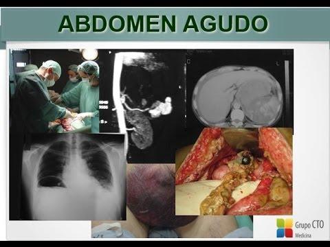 01-Seminario Grupo CTO - Abdomen Agudo