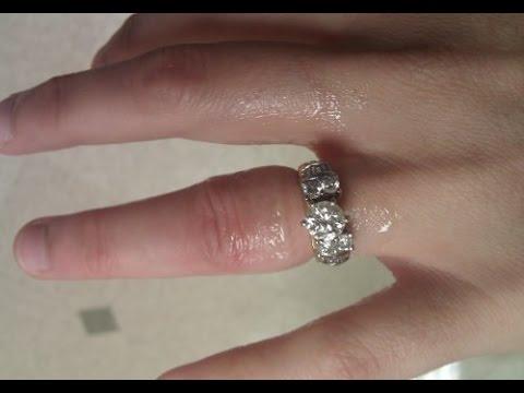 сравнению как снять кольцо с ушибленного пальца лишь самые