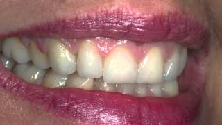 The Best Cosmetic Dentistry YouTube video