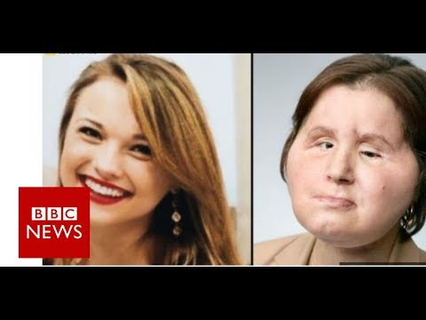 Coping with our daughter's new face - BBC News