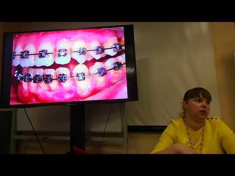 Хирургическое лечение рецессий десны в области зубов и имплантатов. Часть 24