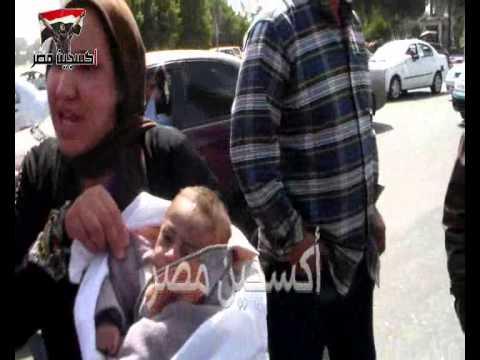 سيدة تطالب مُنظمي وقفة الحيوانات بإعتبار طفلها كلبًا وعلاجه