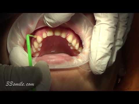 Replace Old Dental Veneers