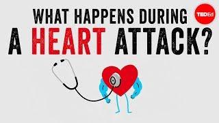 Conozca los signos y síntomas de un ataque cardiaco