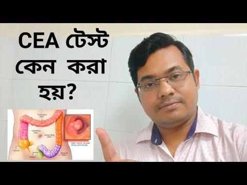 CEA test:Carcinoembrionic antigen:VLOG17:#Doctoronyoutube