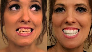 Youtube Video Porcelain Veneers were SMASHED in a FIGHT! See Makeover by Brighter Image Lab