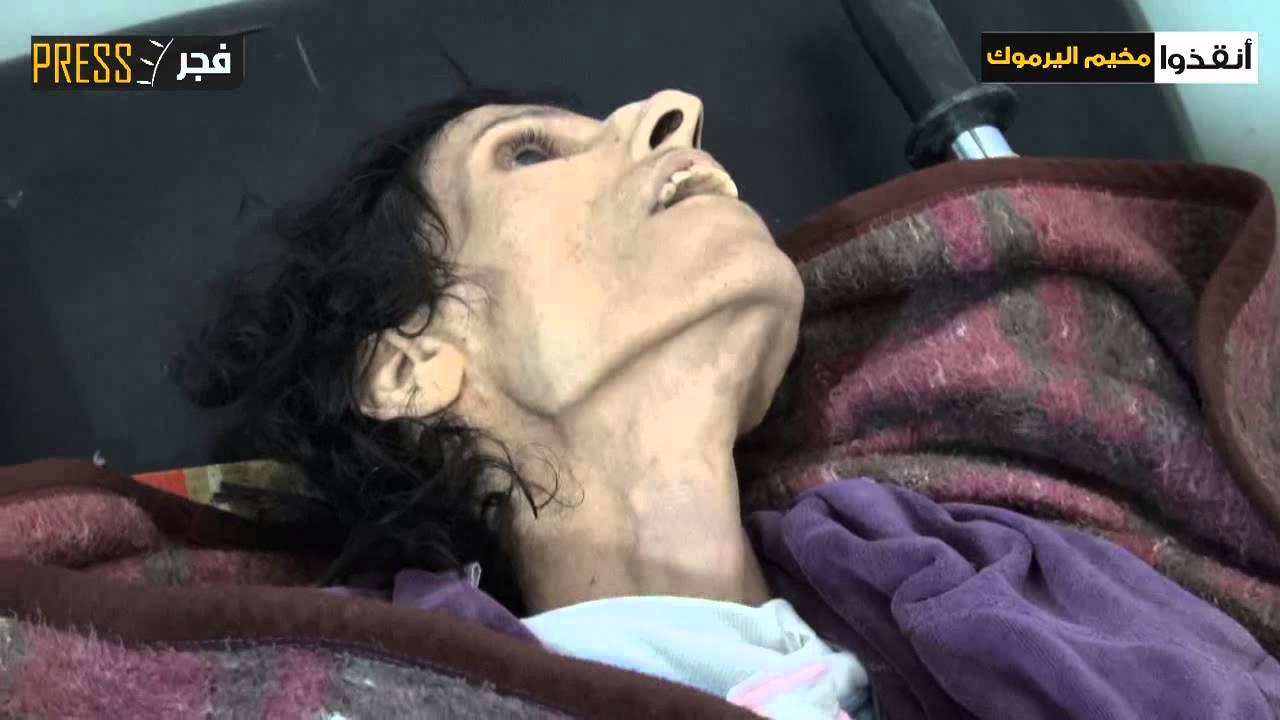الجوع يفتك بإمرأة ورجل في مخيم اليرموك المحاصر   زووم