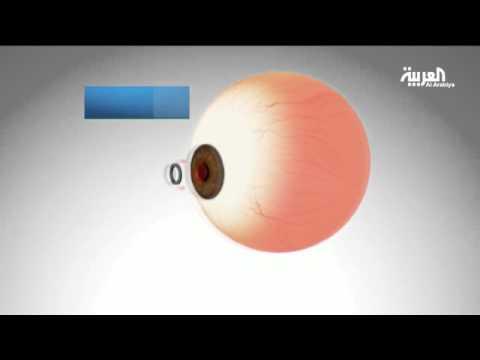 كاميرا  تزرع في العين لعلاج ضعف النظر بعد سن الـ40