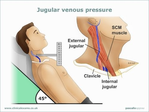 how to measure jvp