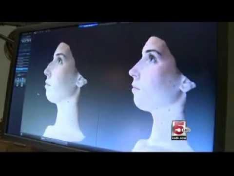 Renaissance Plastic Surgery's Dr. Stefan Craig Shows The Vectra XT's 3D Imaging.wmv