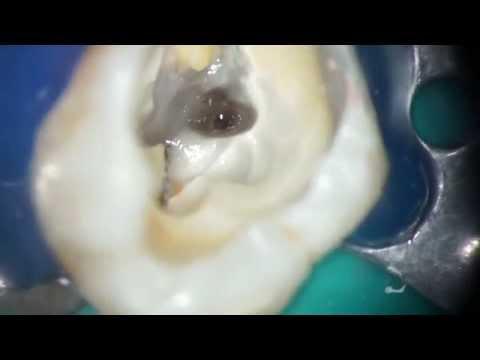 Удаление сломанных файлов из апексов вторых моляров верхней челюсти