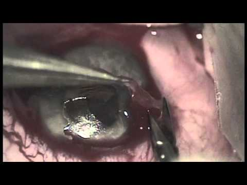 Superficial keratectomy