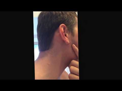 Epic Puss Squeeze Ear Pimple