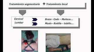Umh1723 2012-13 Lec006 Corrientes Ultraexcitantes De Trabert