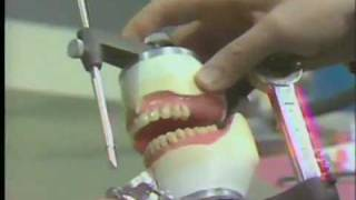 Posterior Teeth - Balanced Occlusion