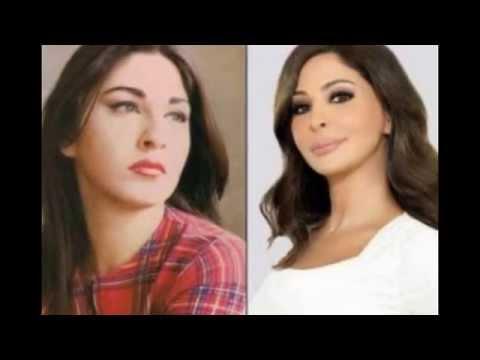 نجمات الفنّ العرب قبل وبعد عمليات التجميل