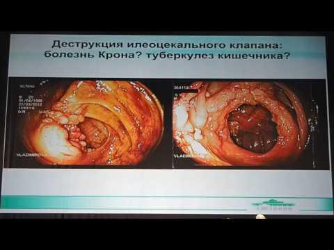 15 Владимирова АА   Сложности дифференциального диагноза болезни Крона и туберкулеза кишечника