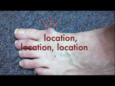 When Does a Ganglion Cyst in the Foot Need Surgery by San Francisco Podiatrist.m4v