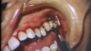 Surgical Elimination Of Periodontal Pockets